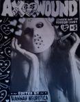 Ax Wound #3